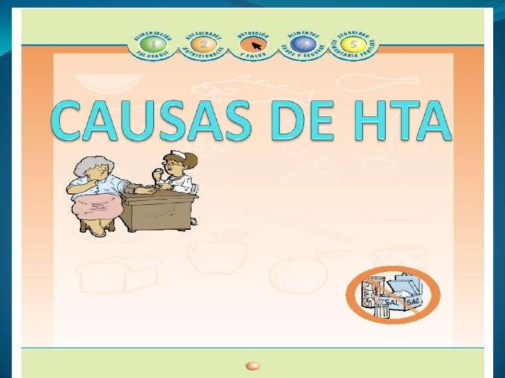 CAUSAS DE HTA<br />