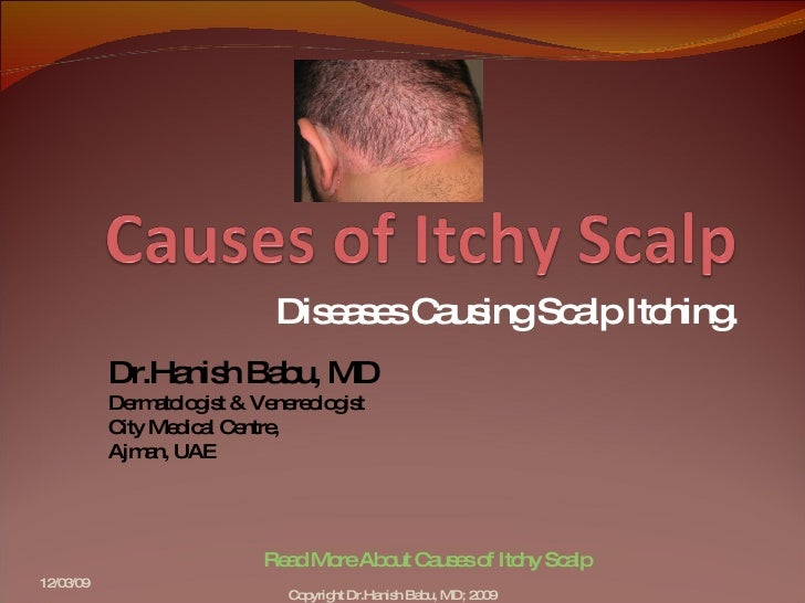 how to fix itchy scalp