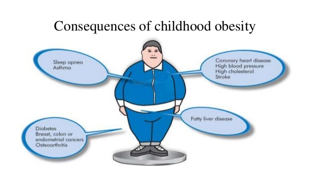 Childhood Obesity Causes & Consequences