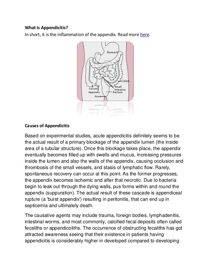 causes of appendicitis, Human Body