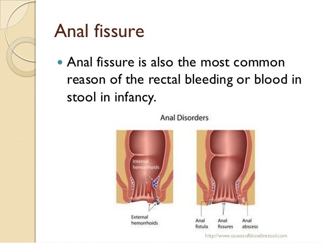 causes of blood in stool, Skeleton
