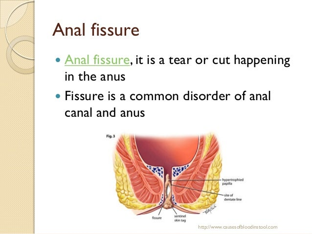 Reasons For Having Blood In Your Stool Causes Of Blood In