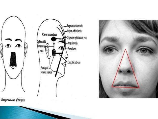 cavernous sinus thrombosis