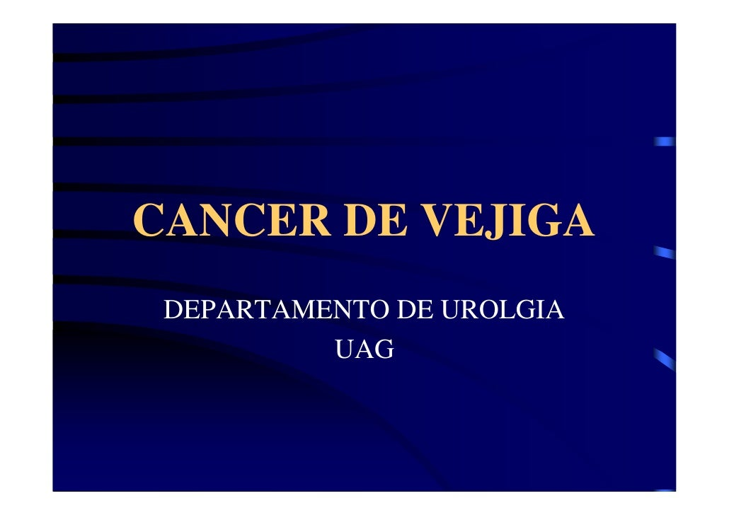 CANCER DE VEJIGA  DEPARTAMENTO DE UROLGIA           UAG