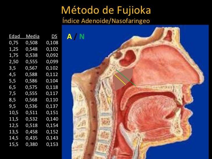 Método de Fujioka Índice Adenoide/Nasofaringeo A  /   N Edad  Media DS 0,75  0,508  0,108 1,25  0,548  0,102 1,75  0,538  ...