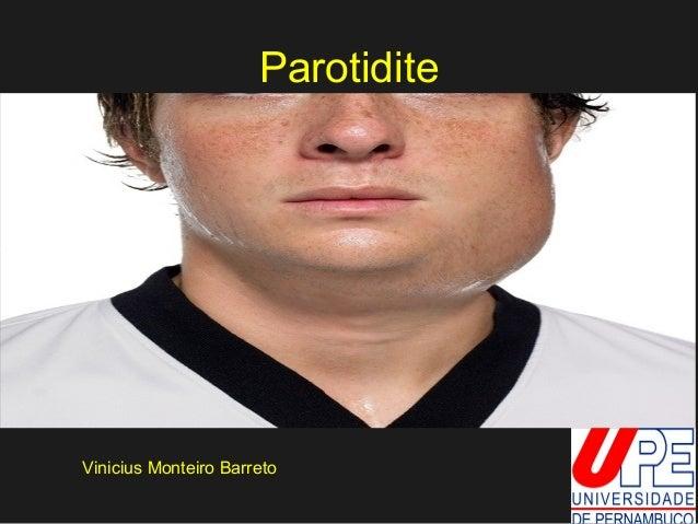 Parotidite  Vinicius Monteiro Barreto