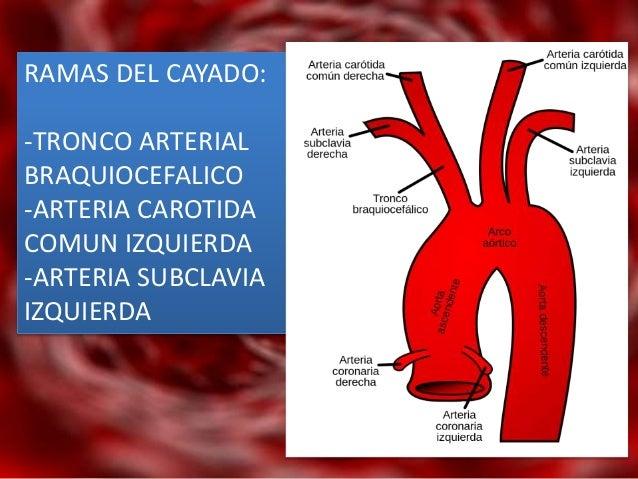 Cayado aortico y sus ramas