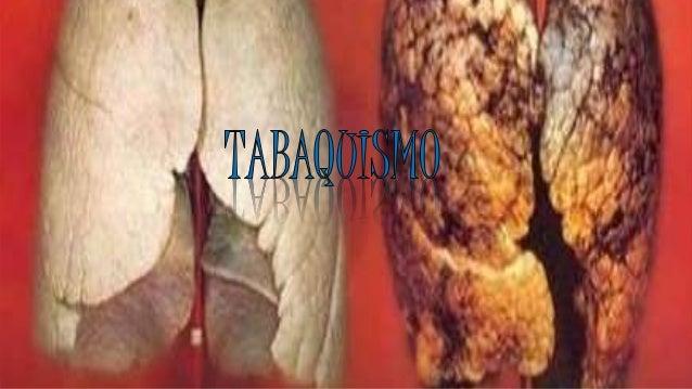INTRODUCCIÓN: Como objetivo es dar a conocer alas personas en las cuales el tabaquismo le ocasiona ala salud y también par...