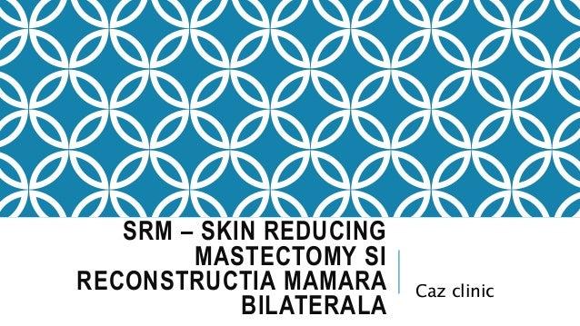SRM – SKIN REDUCING MASTECTOMY SI RECONSTRUCTIA MAMARA BILATERALA Caz clinic