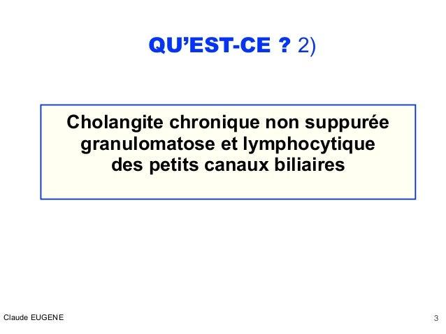 CHOLANGITE BILIAIRE PRIMITIVE (CIRRHOSE BILIAIRE PRIMITIVE) : DIAGNOSTIC ET TRAITEMENT Slide 3