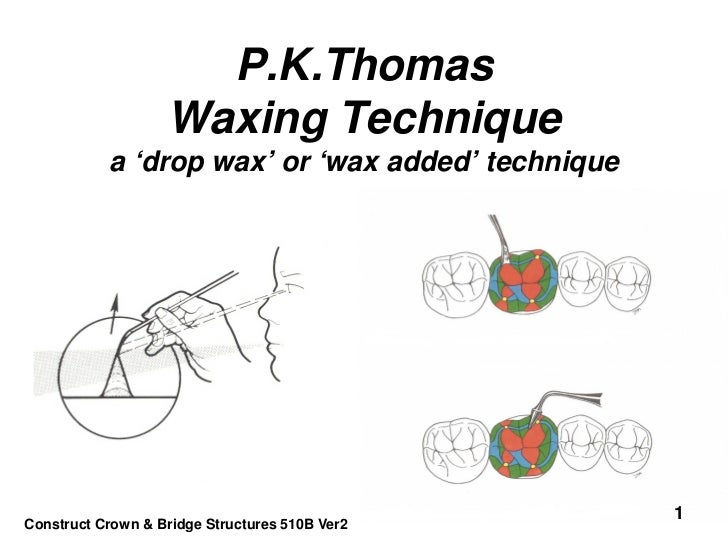 P.K.Thomas                   Waxing Technique           a 'drop wax' or 'wax added' technique                             ...