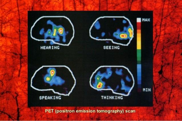 PET (positron emission tomography) scanPET (positron emission tomography) scan