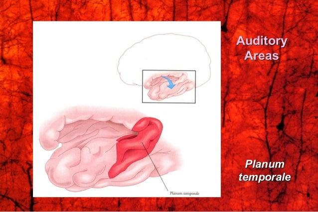 AuditoryAuditory AreasAreas PlanumPlanum temporaletemporale