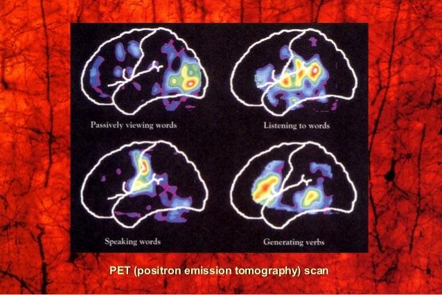 Composite radioisotope brain scanComposite radioisotope brain scan