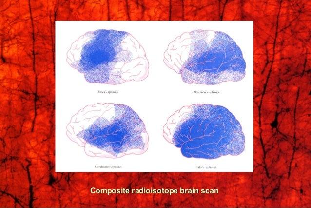 Cerebral Dominance (Lateralization, Asymmetry)Cerebral Dominance (Lateralization, Asymmetry) Dominant HemisphereDominant H...
