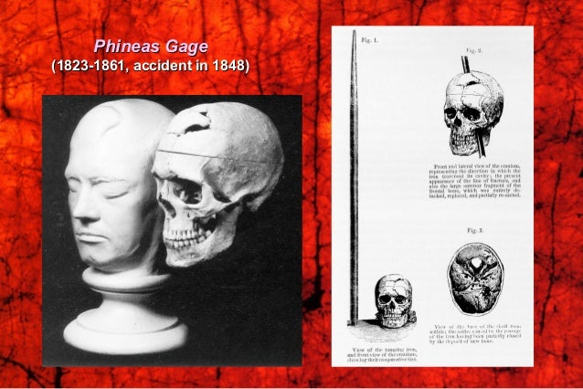 Phineas Gage's lesion reconstructedPhineas Gage's lesion reconstructed (H. Damasio and R. Frank, 1992)(H. Damasio and R. F...