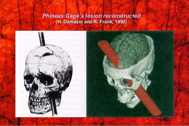 Prefrontal LeucotomyPrefrontal Leucotomy (Frontal Lobotomy)(Frontal Lobotomy) Antonio Egas MonizAntonio Egas Moniz