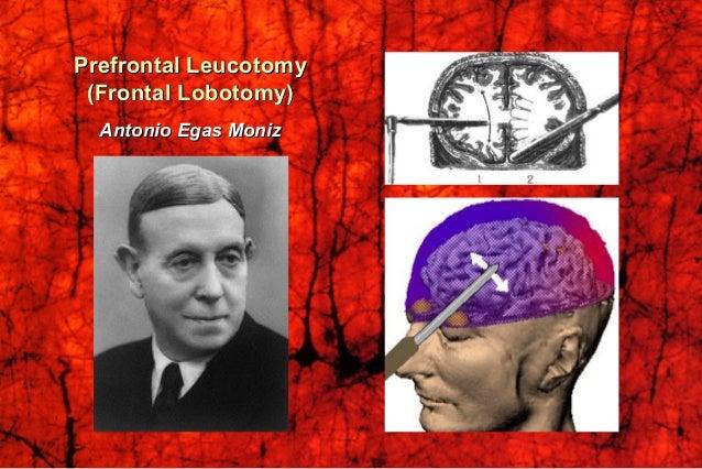 Conceptual Framework of Cerebral FunctionConceptual Framework of Cerebral Function