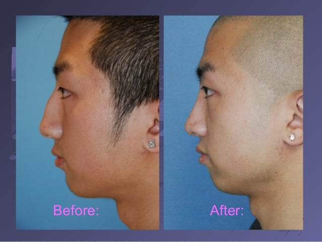 Blonde asian rhinoplasty before and after pictures and