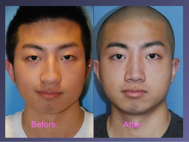 Asian rhinoplasty before and after pictures daddy