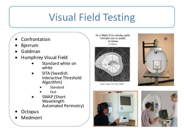 Interpreting Visual Fields
