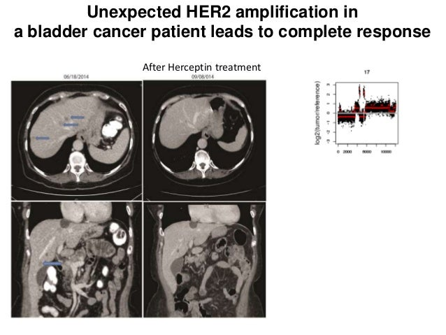 After Herceptin treatment Unexpected HER2 amplification in a bladder cancer patient leads to complete response