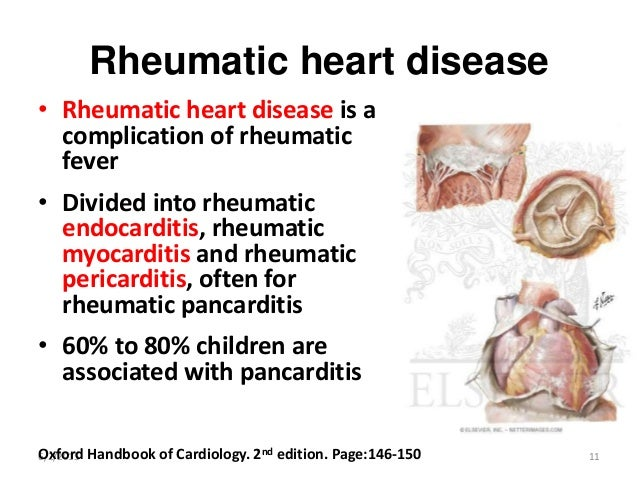 rheumatic heart disease trends and issues Rheumatic fever / rheumatic heart disease  definition rheumatic fever is an auto-immune inflammatory process that occurs as a result of infection with streptococcus bacteria (strep infection).