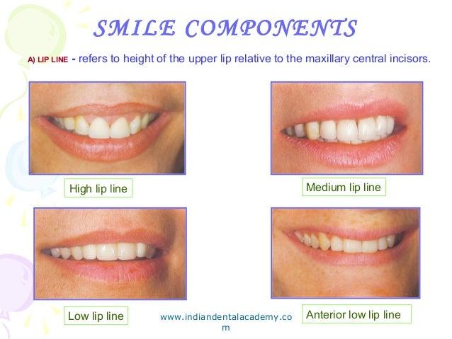 Complete denture esthetics/ cosmetic dentistry training