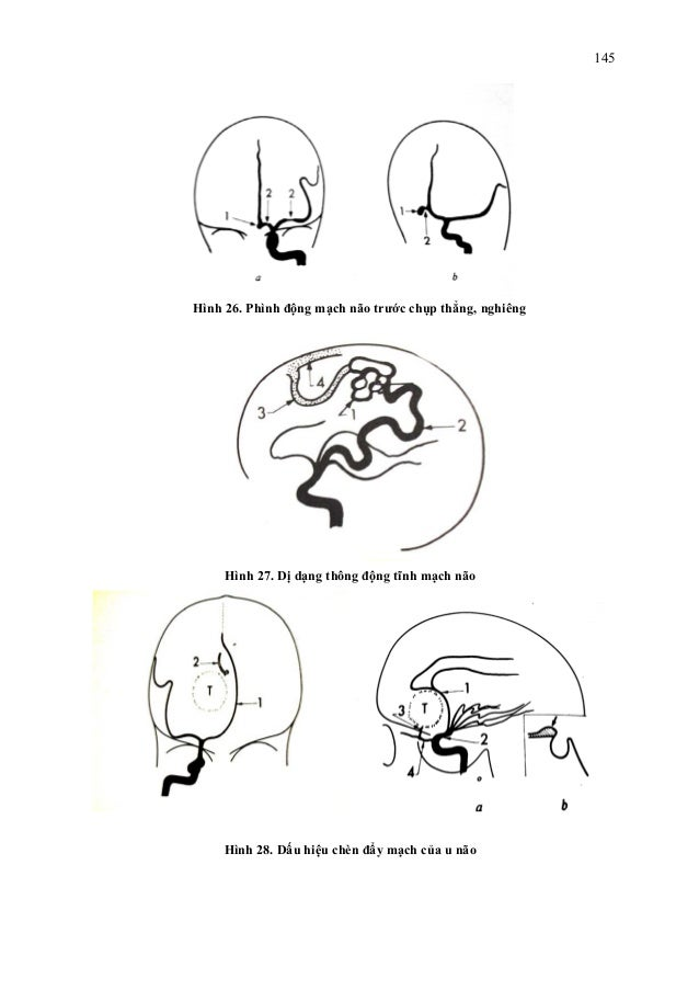 Chẩn đoán hình ảnh