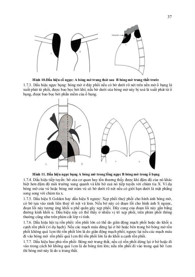 37 Hình 10.Dấu hiệu cổ ngực: A bóng mờ trung thát sau B bóng mờ trung thất trước 1.7.3. Dấu hiệu ngực bụng: bóng mờ ở đáy ...