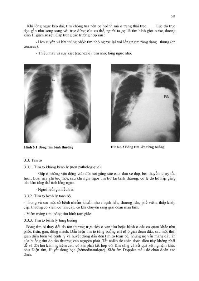 58 Khi lồng ngực kéo dài, tim không tựa nên cơ hoành mà ở trạng thái treo. Lúc đó trục dọc gần như song song với trục đứng...