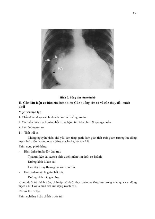 59 Hình 7. Bóng tim lớn toàn bộ II. Các dấu hiệu cơ bản của bệnh tim: Các buồng tim to và các thay đổi mạch phổi Mục tiêu ...