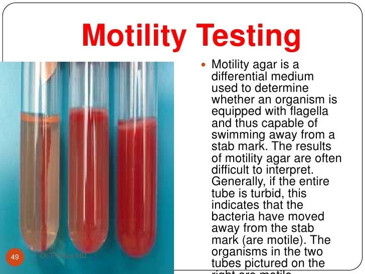 bacteria and motility medium tubes The motility was test by stabbing the agar in a tube and placing some bacteria inside of  this bacteria proved to be resistant  staphylococcus epidermidis.