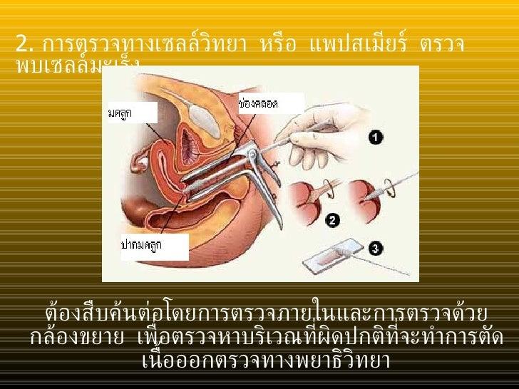 <ul><li>2.  การตรวจทางเซลล์วิทยา หรือ แพปสเมียร์   ตรวจพบเซลล์มะเร็ง </li></ul>ต้องสืบค้นต่อโดยการตรวจภายในและการตรวจด้วยก...