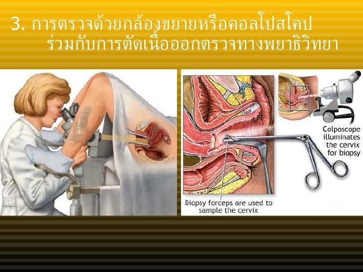 <ul><li>3.  การตรวจด้วยกล้องขยายหรือคอลโปสโคป </li></ul><ul><li>ร่วมกับการตัดเนื้อออกตรวจทางพยาธิวิทยา </li></ul>