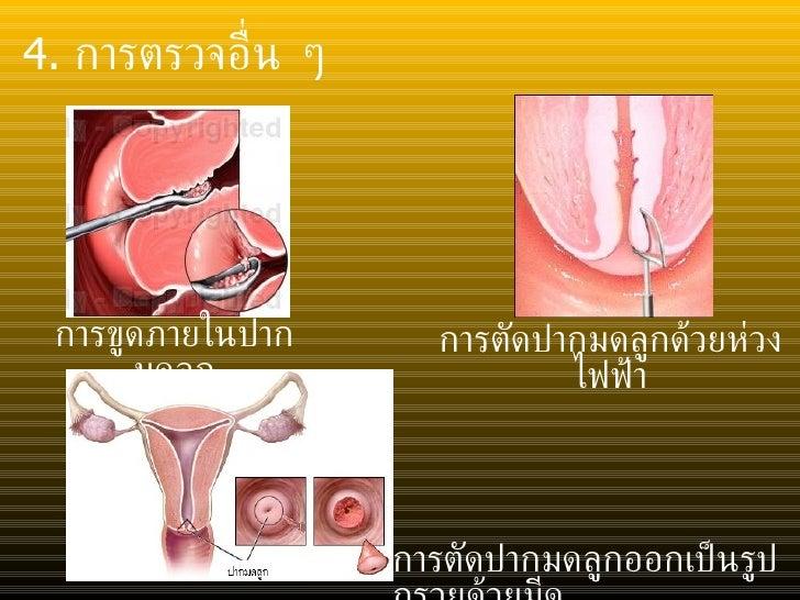 <ul><li>4.  การตรวจอื่น ๆ </li></ul>การขูดภายในปากมดลูก การตัดปากมดลูกออกเป็นรูปกรวยด้วยมีด การตัดปากมดลูกด้วยห่วงไฟฟ้า