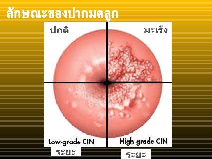 ลักษณะของปากมดลูก ระยะ ระยะ ปกติ มะเร็ง