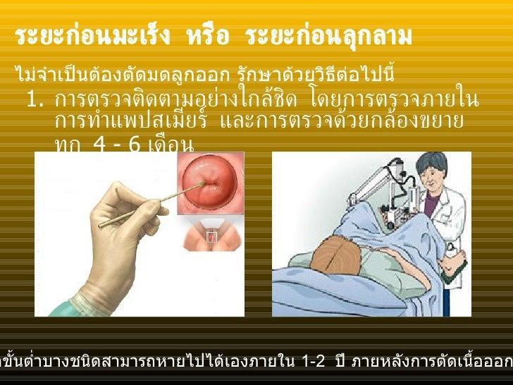 ระยะก่อนมะเร็ง หรือ ระยะก่อนลุกลาม <ul><li>การตรวจติดตามอย่างใกล้ชิด โดยการตรวจภายใน การทำแพปสเมียร์ และการตรวจด้วยกล้องขย...