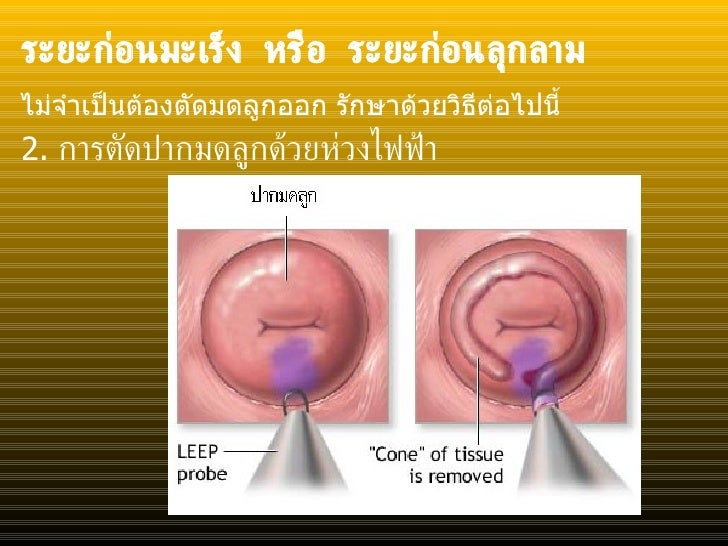 ระยะก่อนมะเร็ง หรือ ระยะก่อนลุกลาม <ul><li>2.  การตัดปากมดลูกด้วยห่วงไฟฟ้า </li></ul>ไม่จำเป็นต้องตัดมดลูกออก รักษาด้วยวิธ...
