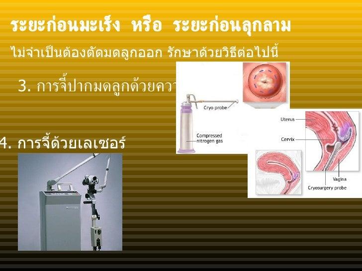 ระยะก่อนมะเร็ง หรือ ระยะก่อนลุกลาม <ul><li>3.  การจี้ปากมดลูกด้วยความเย็น </li></ul>ไม่จำเป็นต้องตัดมดลูกออก รักษาด้วยวิธี...