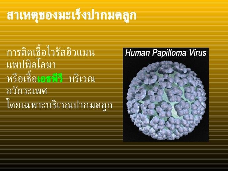 สาเหตุของมะเร็งปากมดลูก   <ul><li>การติดเชื้อไวรัสฮิวแมนแพปพิลโลมา </li></ul><ul><li>หรือเชื้อ เอชพีวี  บริเวณอวัยวะเพศ  <...