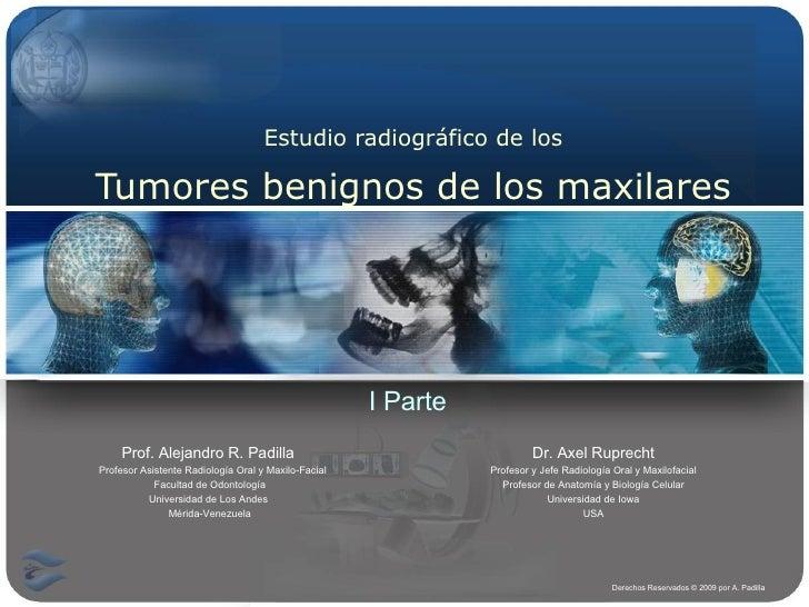 Estudio radiográfico de los Tumores benignos de los maxilares Prof. Alejandro R. Padilla   Profesor Asistente Radiología O...