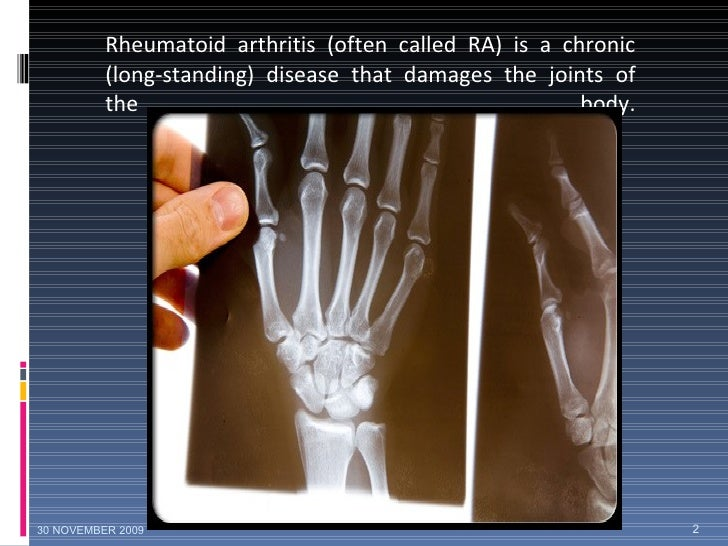 Rheumatoid arthritis (often called RA) is a chronic (long-standing) disease that damages the joints of the body. 30 NOVEMB...