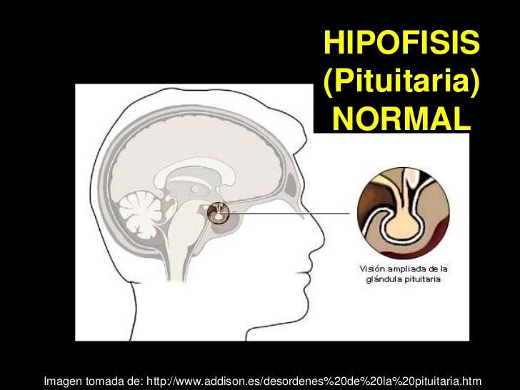 Acromegalia Slide 3