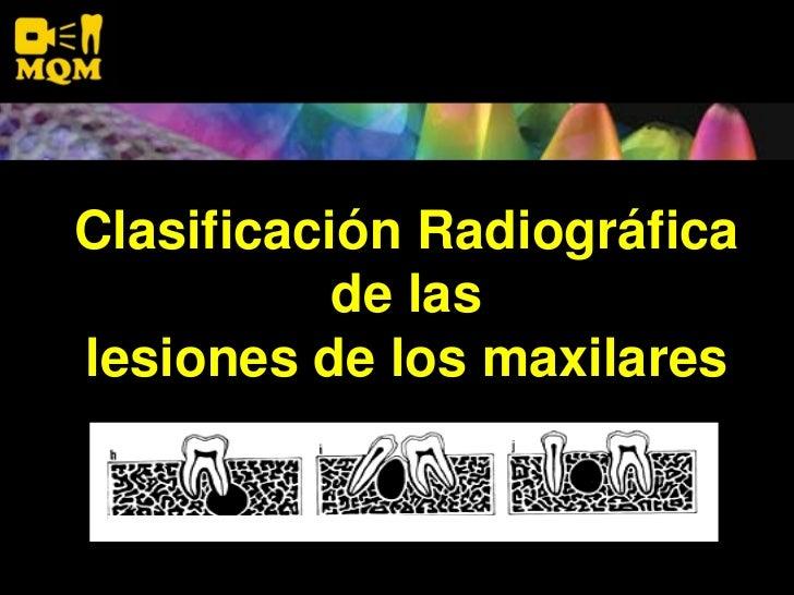 Clasificación Radiográfica            de las lesiones de los maxilares