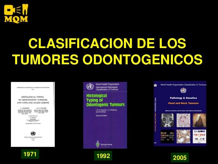CLASIFICACION DE LOS TUMORES ODONTOGENICOS      1971    1992     2005