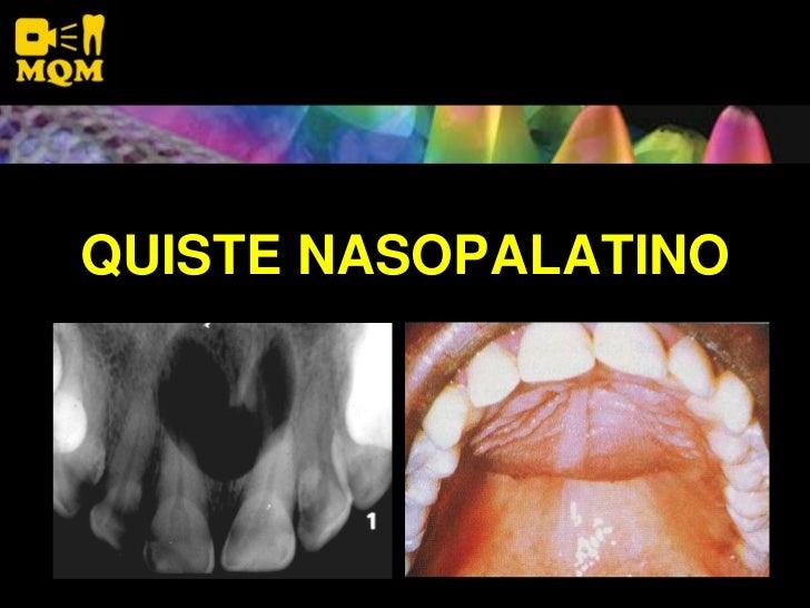 QUISTE NASOPALATINO