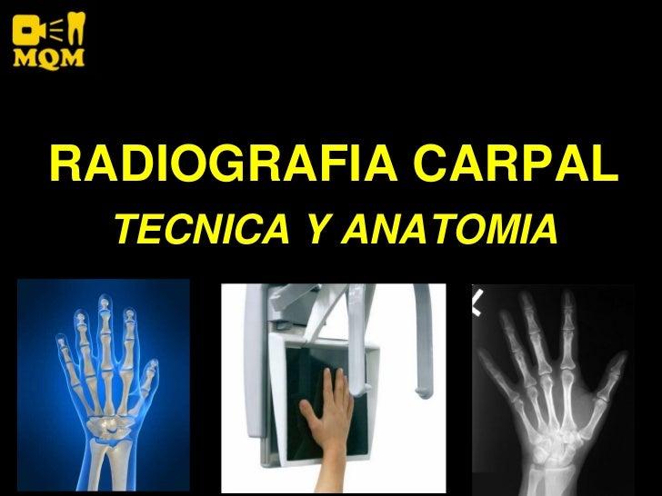 RADIOGRAFIA CARPAL  TECNICA Y ANATOMIA
