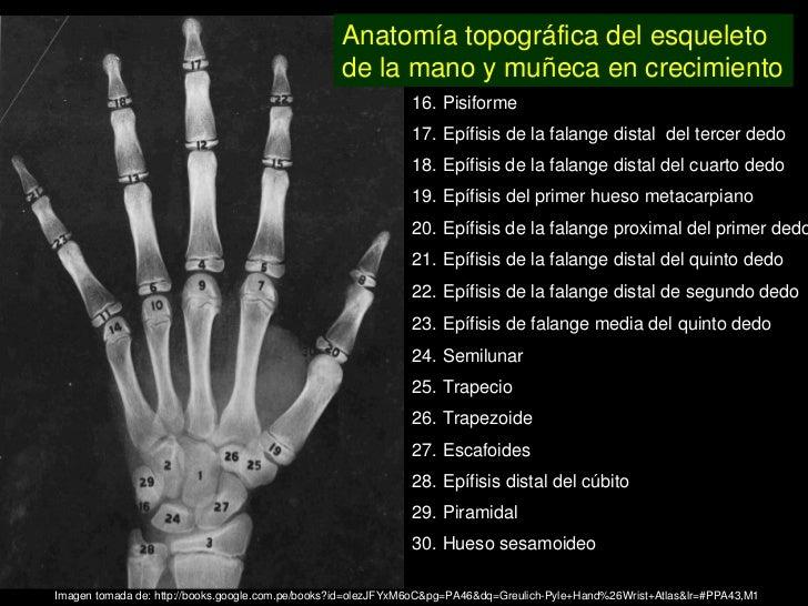 Único Anatomía Mano Radiografía Embellecimiento - Anatomía de Las ...
