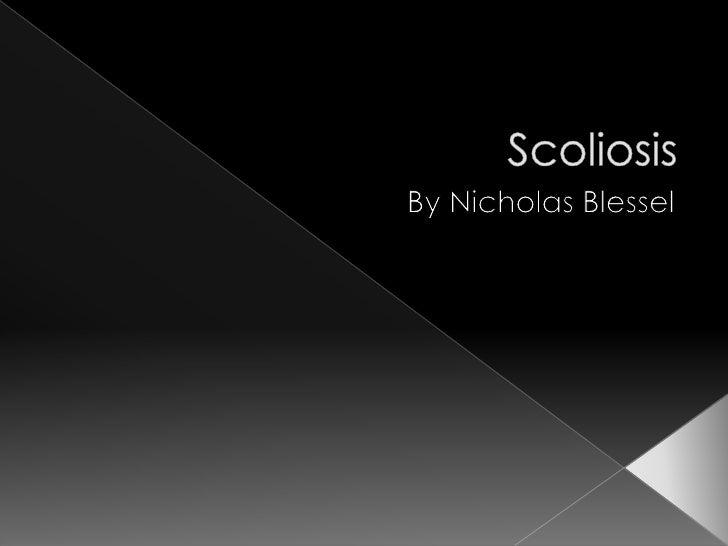 """Scoliosis, from the Greek word """"skolíōsis,""""      meaning """"Crooked."""""""